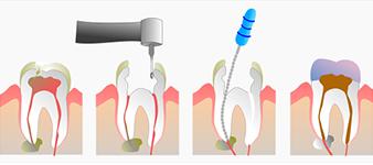 Esempio di trattamento endodontico